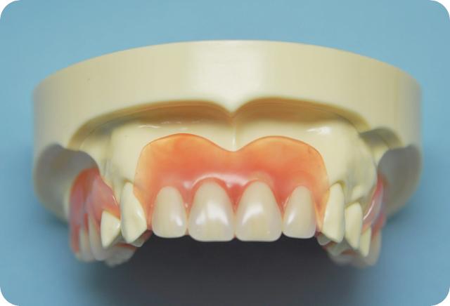 清瀬 さくらんぼ歯科の入れ歯作製