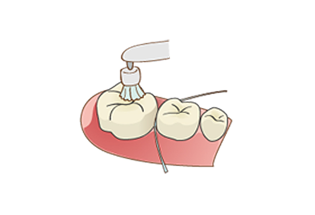 清瀬さくらんぼ歯科の予防歯科