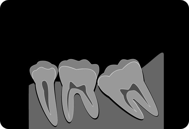 清瀬さくらんぼ歯科の歯科口腔外科